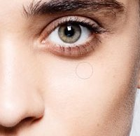 How To Whiten Teeth And Remove Dark Circles Underneath Eyes Quickly
